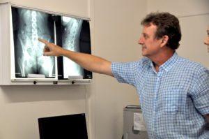 best chiropractor xray report