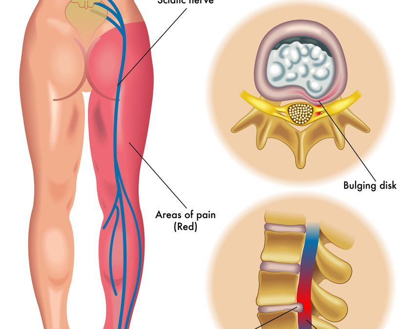 Sciatica – Types, Causes and Treatments