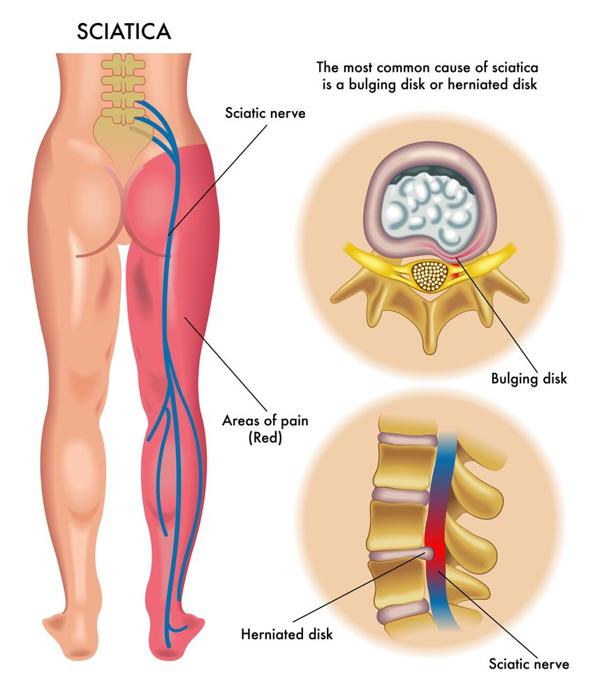 the complete sciatica guide - types, causes and treatments