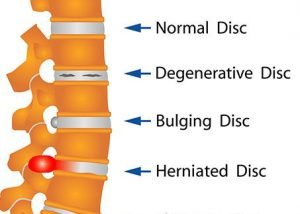 spinal discs diagram