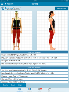 PostureScreen Posture Analysis